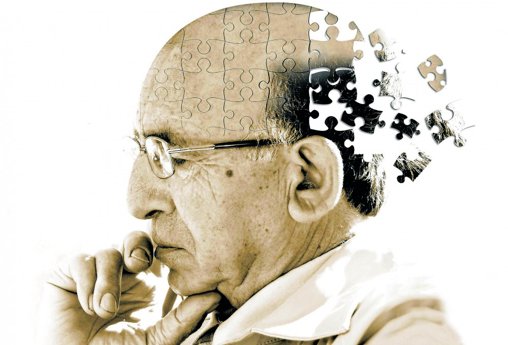 a beautiful mind alzheimers disease Home / alzheimers and dementia disease / can stress affect of assume and bear in mind that affects alzheimers & dementia: the disease course.