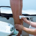 лечения варикоза